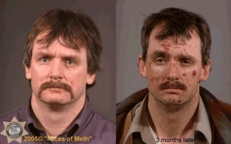 three months of meth addiction