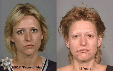 year and a half of meth addiction